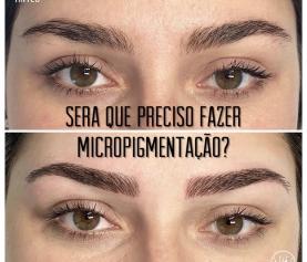 Há Contra Indicações Para Realizar A Micropigmentação Nas